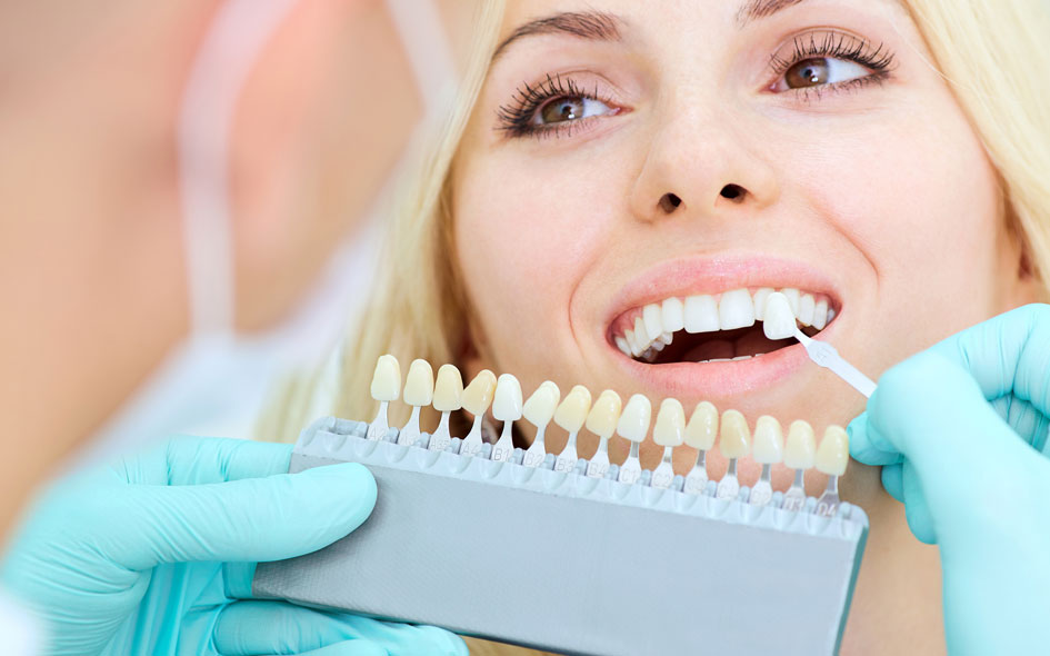 Dental Veneers in Carlsbad, CA