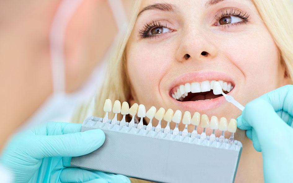 Dental Veneers in Carlsbad, CA