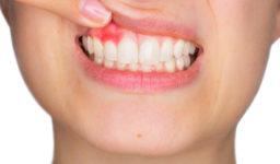 4 Ways To Help Stop Bleeding Gums