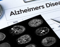 Study Reveals Ways to Help Reduce Risk of Developing Dementia/Alzheimer's