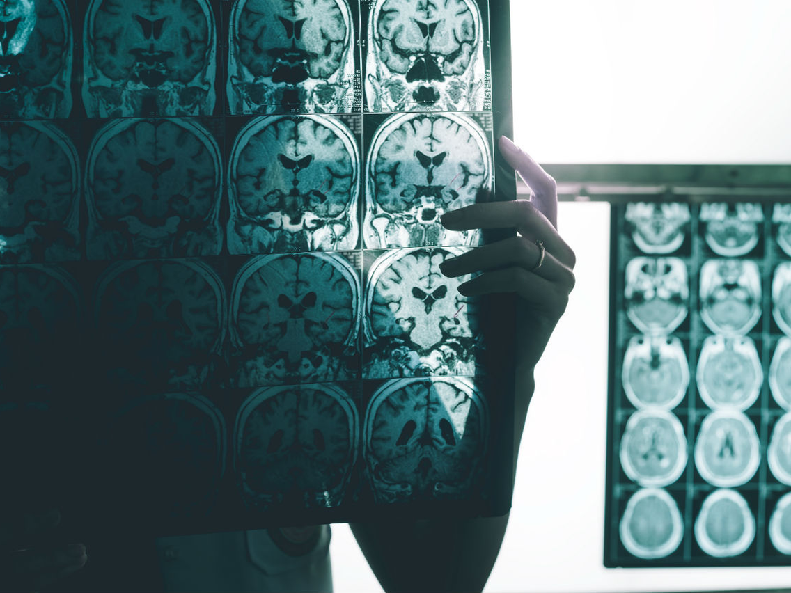 US Drug Company Says It Can Slow Alzheimer's Disease
