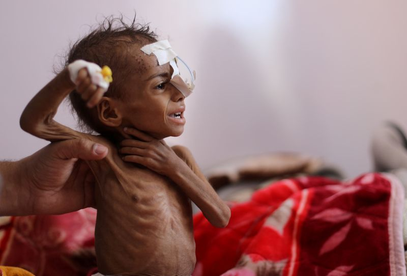 More Than 400,000 Children Under 5 Could Die of Starvation