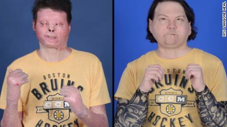 New Jersey Man Gets World's First Hands and Face Transplant!
