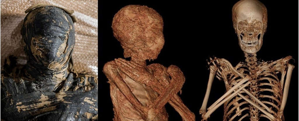 World's First Pregnant Mummy Recently Discovered
