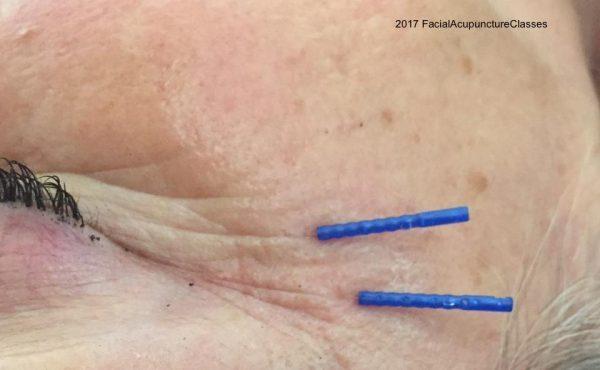 acupuncture collagen