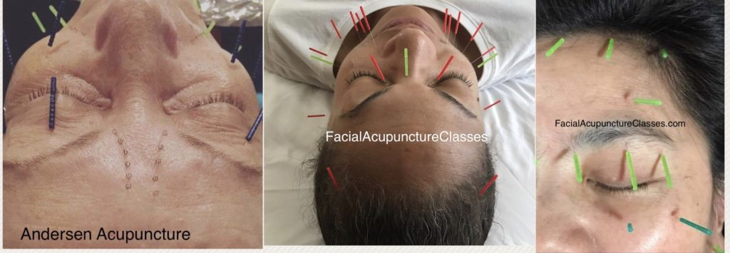 photos of facial acupuncture technique