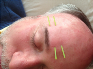 Submuscular Needling Advanced Facial Acupuncture Class