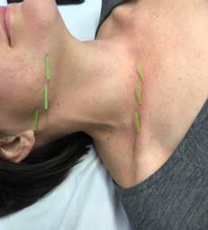 Facial Acupuncture for Neck Gellis