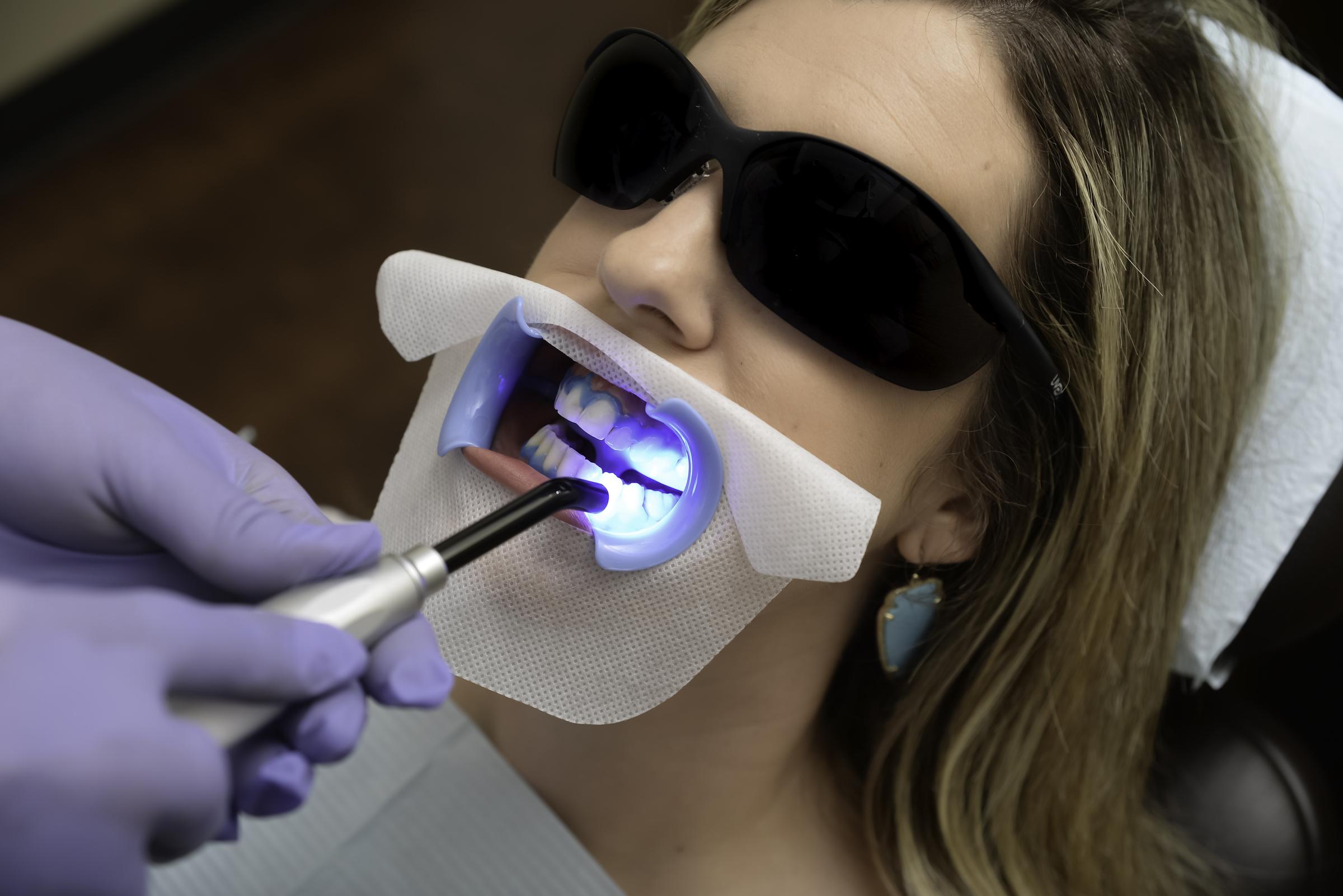 Whitening Treatment Image