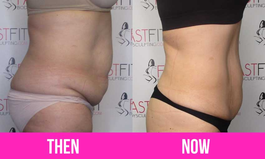fast fit client amazing weight loss transformation before and after