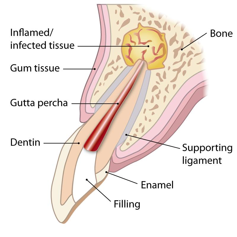 apicoectomy