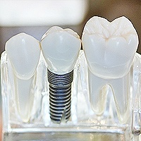 Quality Affordable Dental Services | Dental Implants