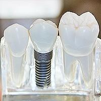 Quality Affordable Dental Services | Dental Implants