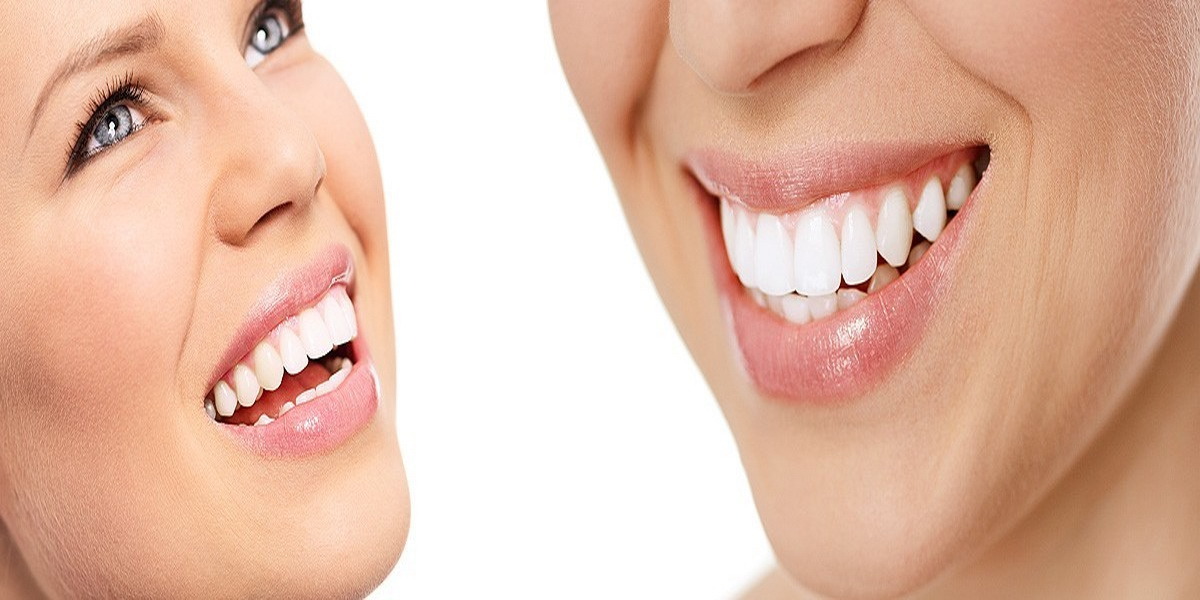 Cosmetic Dentist | Blog | Ash Dental Irvine