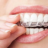 invisalign Dental Service