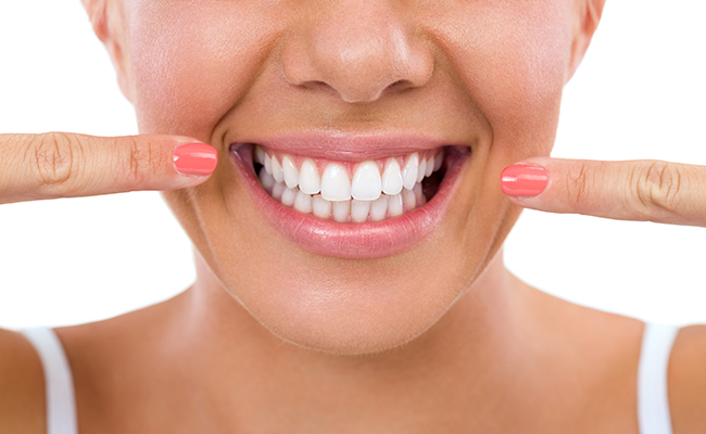 Teeth Whitening in Irvine | ASH Dental Irvine