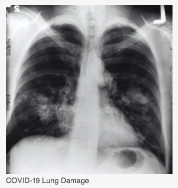 COVID-Lung-Damage-.png?time=1624201211