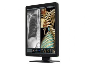 JVC CL-S200 Color LCD Medical Monitor Display