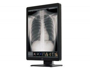 JVC CL-S300 LCD Medical Monitor Display