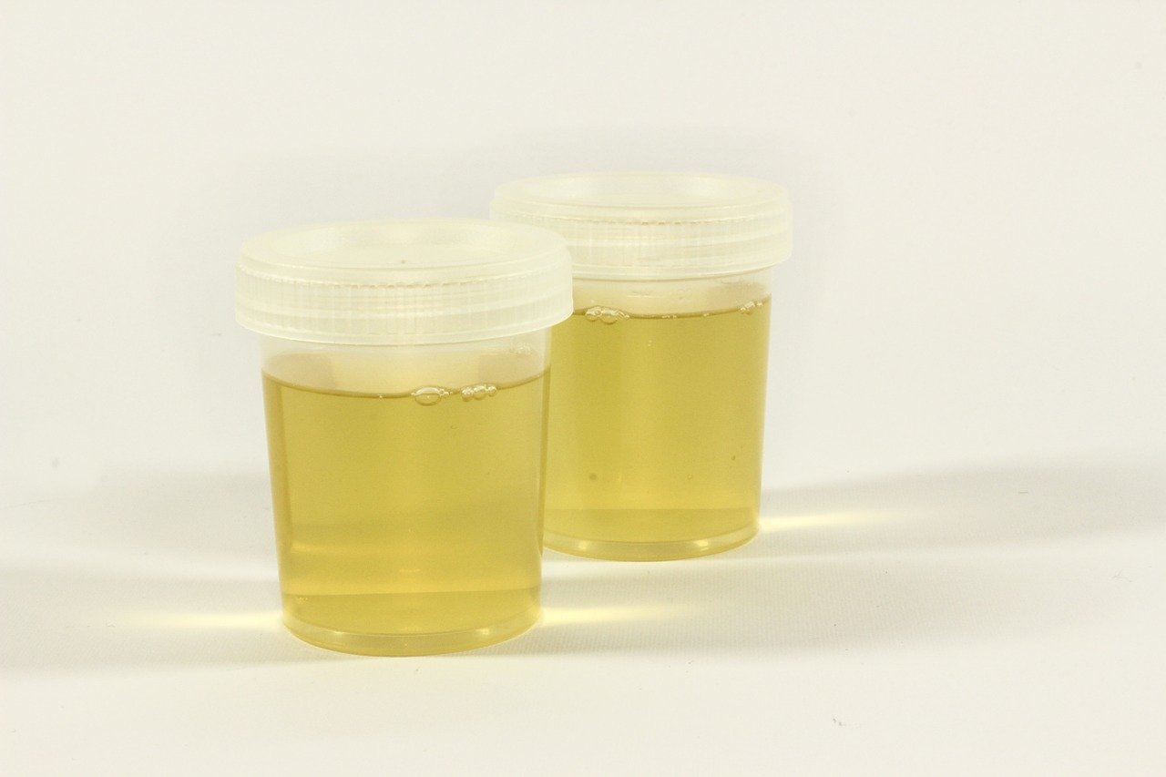How Long Does Weed Stay In Your Urine