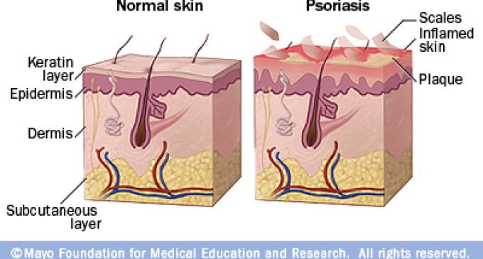 Skins Psoriasis and Cardiovascular Disease Risk