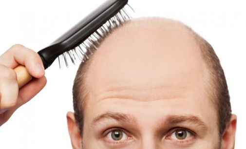 Is Hair Transplantation Surgery Safe?