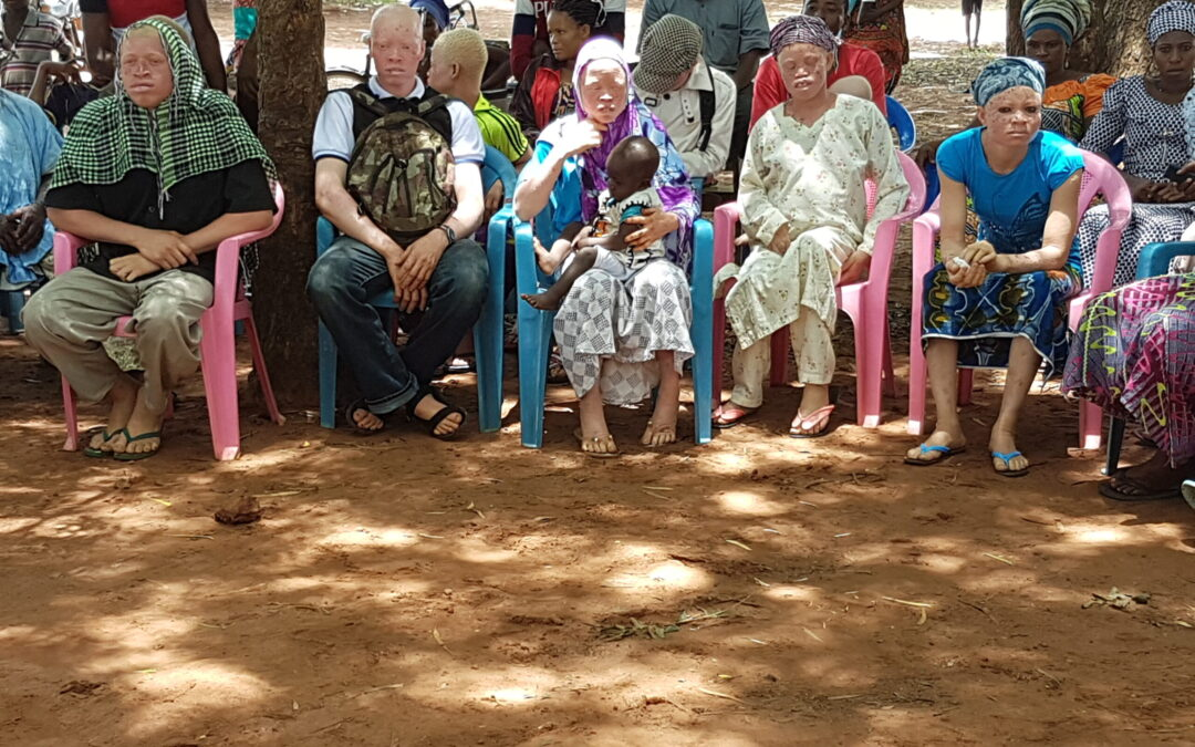 Creating Albinism Awareness, One Community at a Time