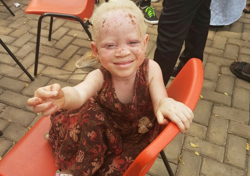 """ENA Hosts """"I am a Human Being""""Forum to Protect Albinos"""