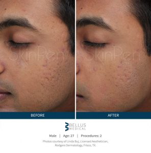 skinpen-male-before-after-1-800x810-2-296x300