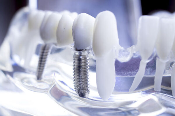 Dental Implants from Norwich Periodontal Associates