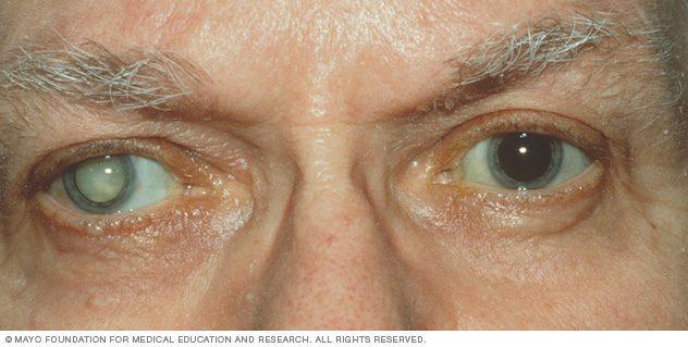 cataract NIH