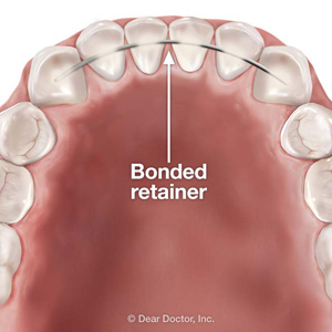 bonded lower retainer
