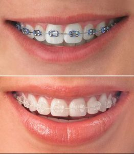 picture of clear and metal braces