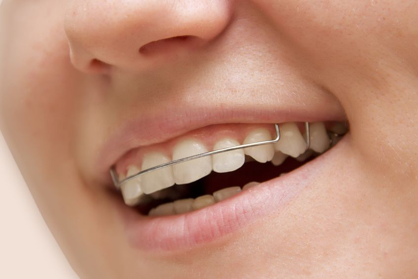 the girl smiling with retainers on teeth