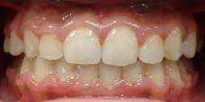 after braces