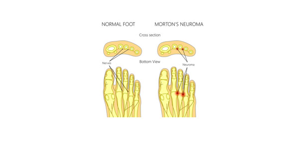 Morton's Neuroma pain comes from the nerves between the toe bones