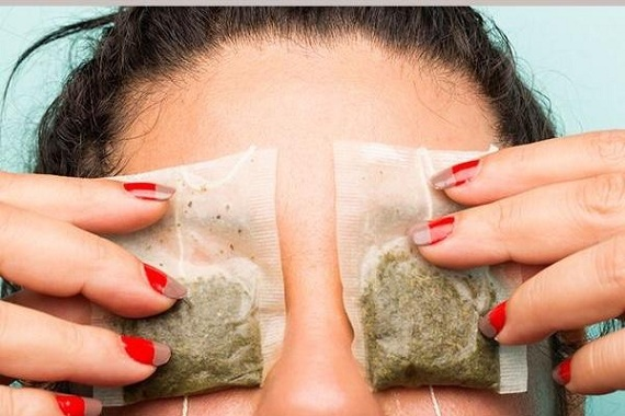 Caffeine in soaked tea bags cures puffy eyes | Girlfriend is Better