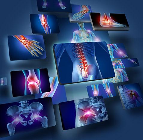 spine umbilical blog photo