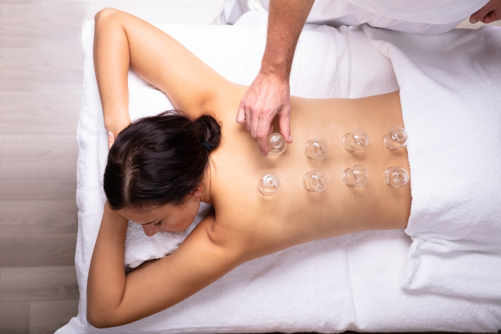 Young Woman Receiving Cupping Treatment On Her Back In Spa