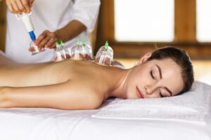 women laying on chest with cupping treatment on back