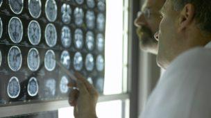 Pernambuco fará seleção para contratação de 139 médicos