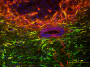 Neural Stem Cells in Spinal Cord Injury by Yilin Mao, University of Technology, Sydney