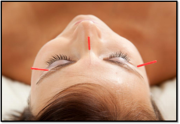 Acupuncture and Mental Health—what's the Connection?