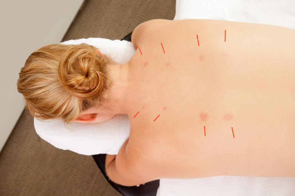 Relaxation Therapy with Acupuncture1