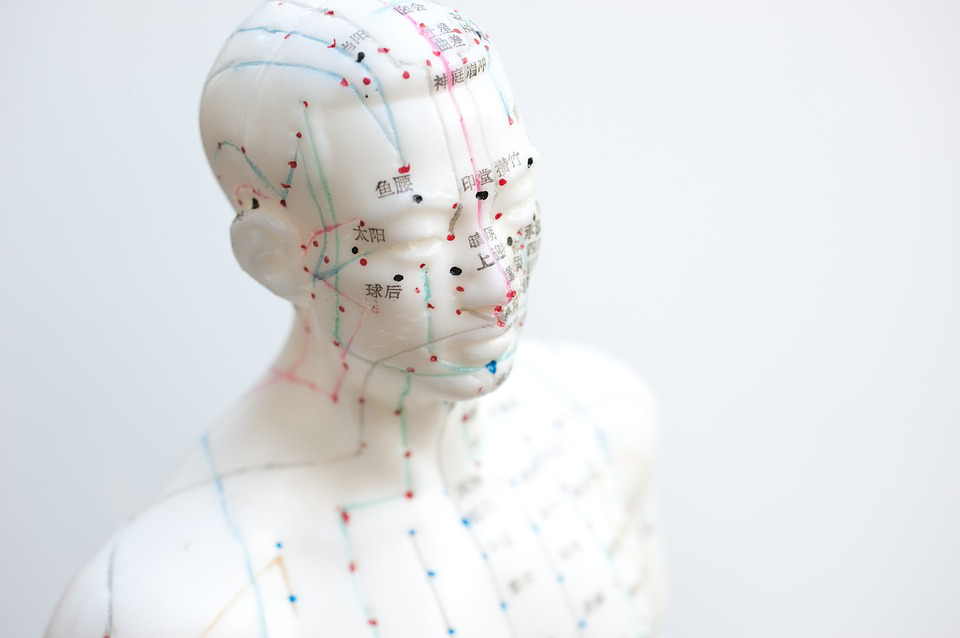 Acupuncture A Therapeutic Treatment for Anxiety