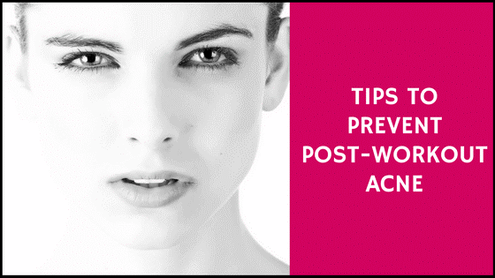 Tips To Prevent Post Workout Acne