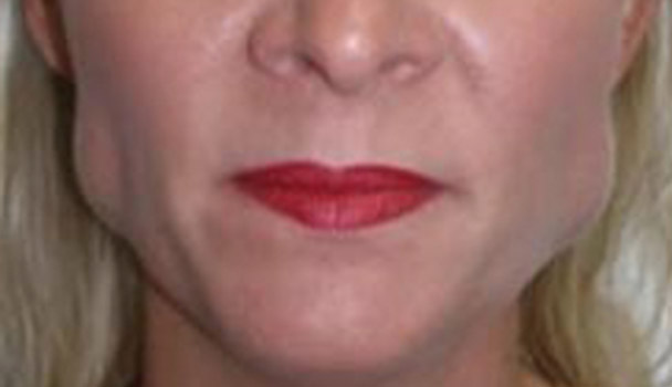 Botox Injectables Glasgow Family Cosmetic Dentistry