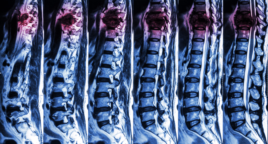 Do You Have a Spinal Cord Injury? Alleviate the Pain For Good!