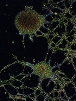 Neurogenesis by Kharen Doyle, Garvan Institute of Medical Research