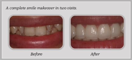before_after2